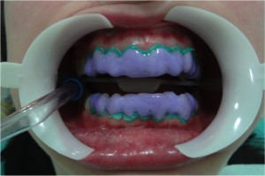 Clinica Seballos Clareamento Dental Clinica Seballos