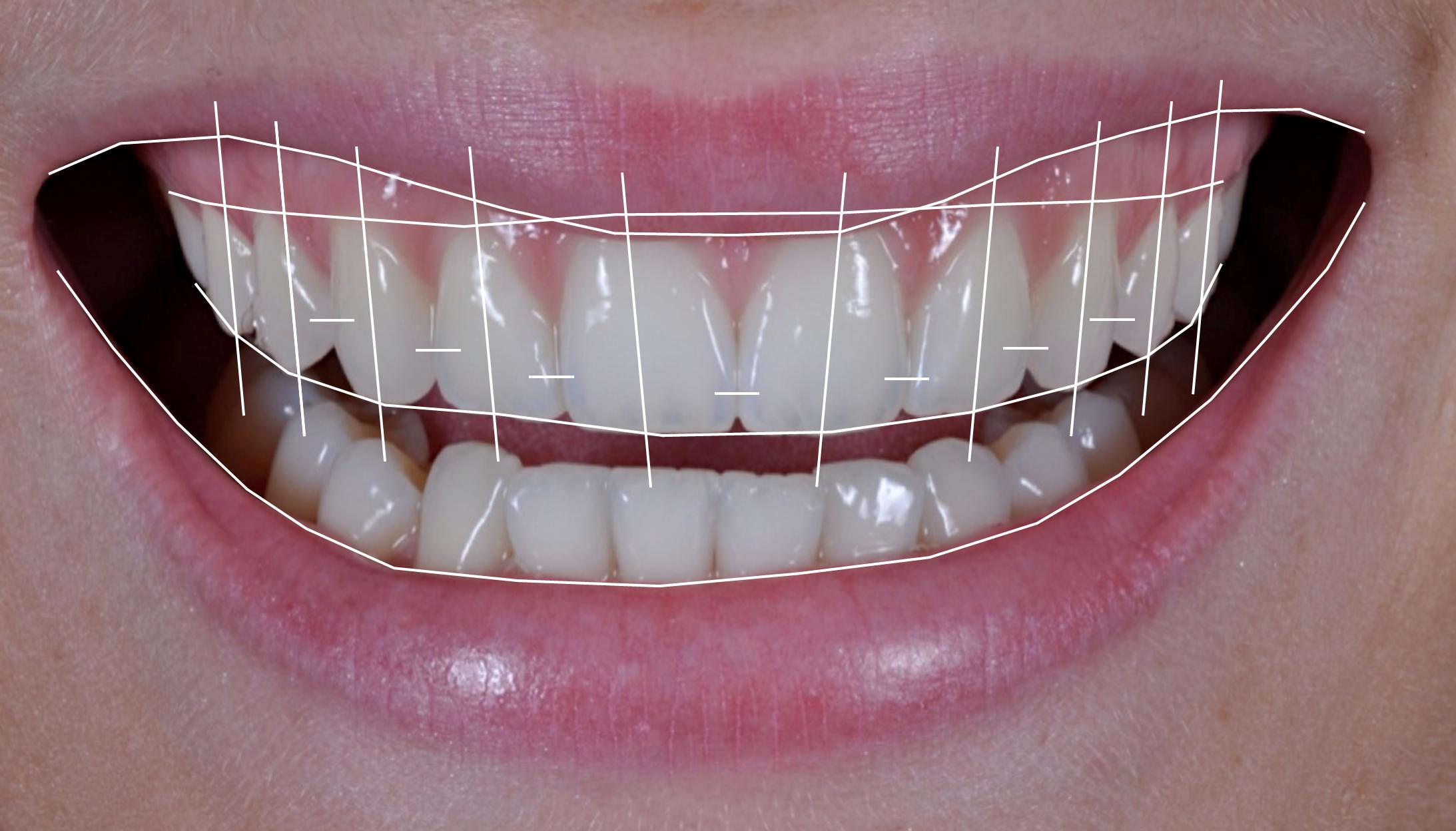 Importância da fotografia digital na Odontologia